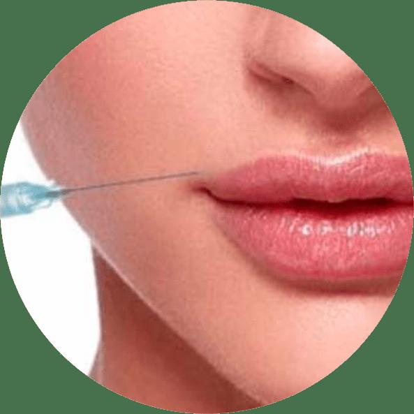 preenchimento-labial-rio-de-janeiro