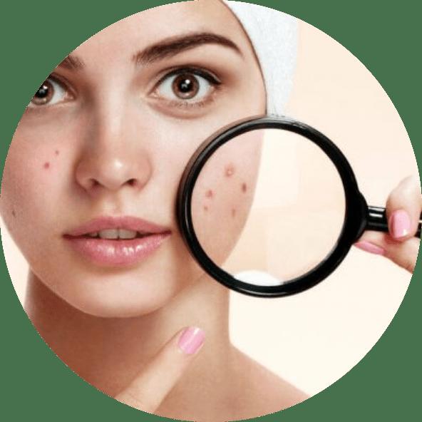 tratamento-acnes-rio-de-janeiro
