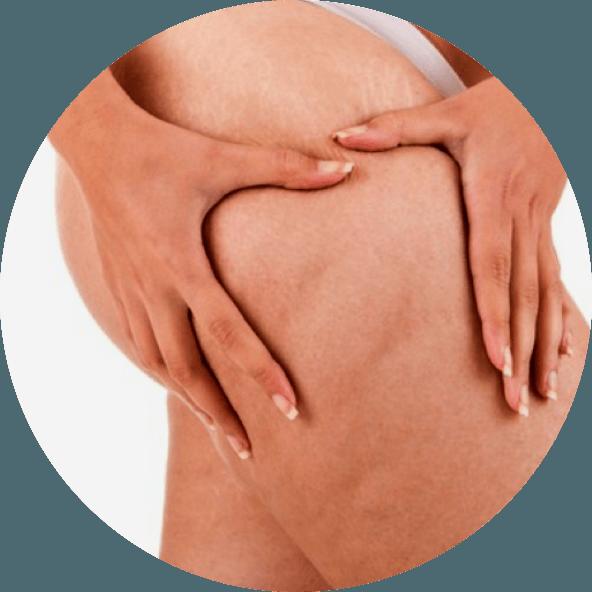 tratamento-celulites-rio-de-janeiro