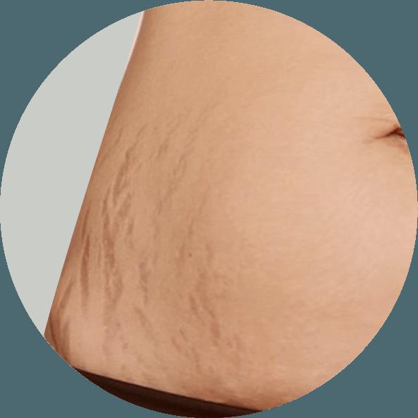 tratamento-estrias-vermelhas-rio-de-janeiro