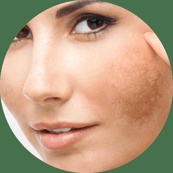 tratamento-manchas-melasmas-rio-de-janeiro