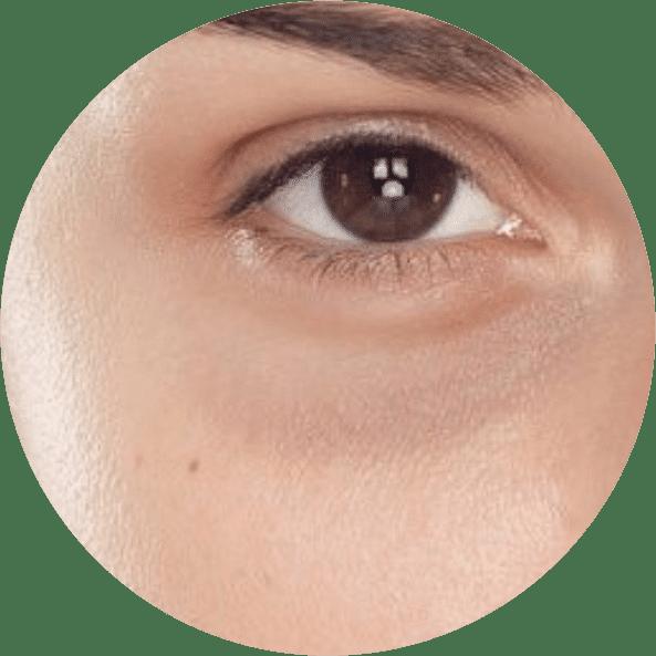 tratamento-olheiras-rio-de-janeiro