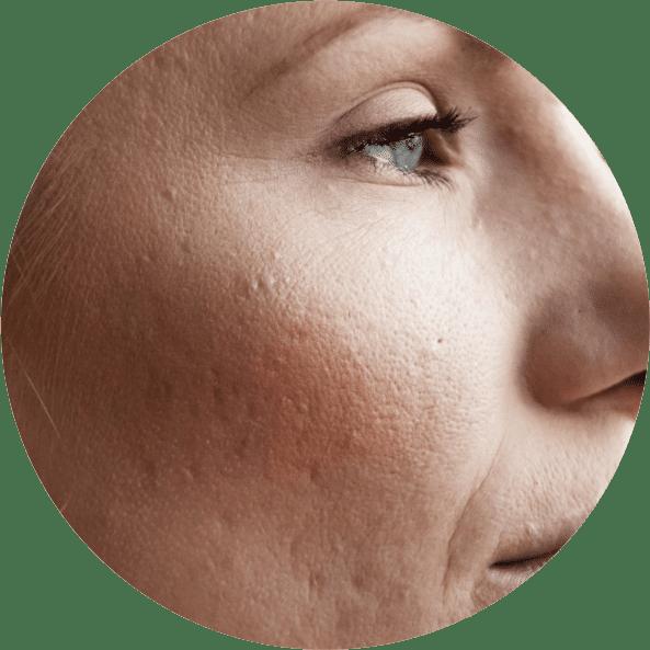 tratamento-poros-dilatados-cicatrizes-trio-de-janeiro