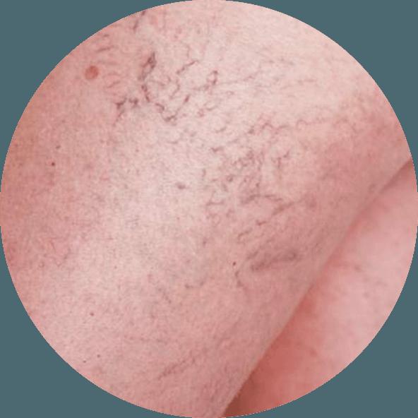 tratamento-varizes-microvasos-rio-de-janeiro